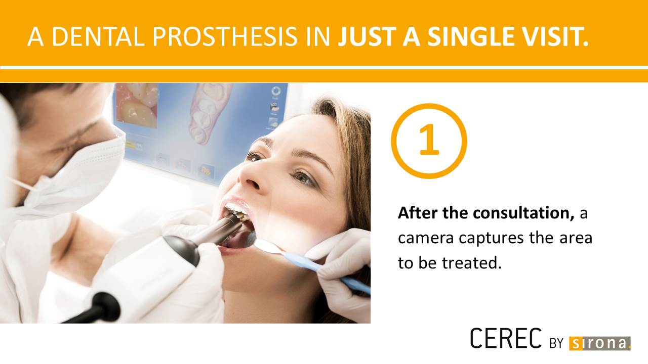 Dental Prosthesis in a single visit 1