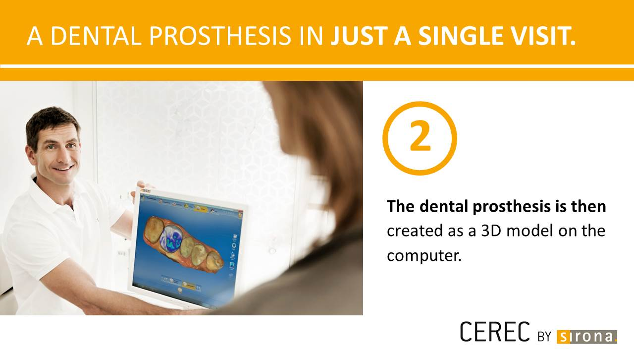 Dental Prosthesis in a single visit 2