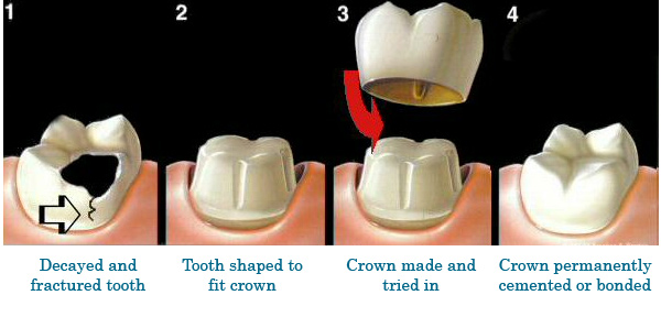 Process of Dental Crown