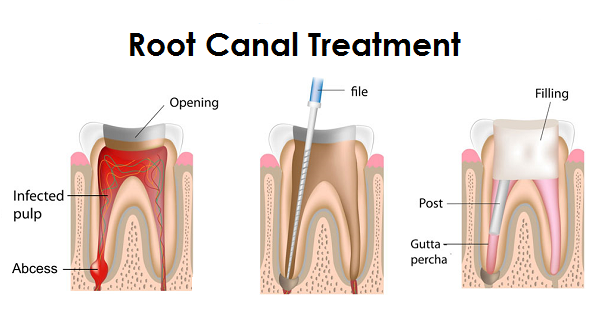 Process of RCT
