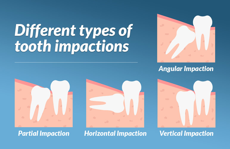 Types of tooth impactions